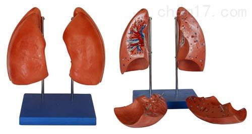 肺解剖模型 人体各大器官