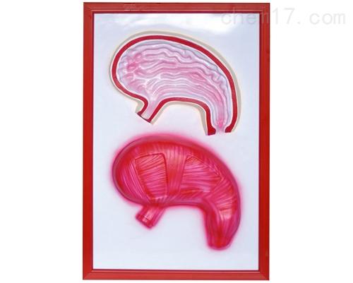 胃解剖浮雕模型