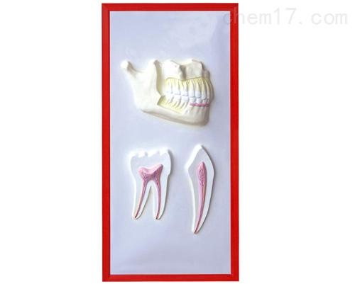 牙列与牙解剖浮雕模型