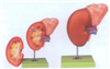 GD/A14006肾脏与肾上腺放大模型