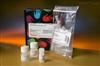 抗核抗体试剂盒